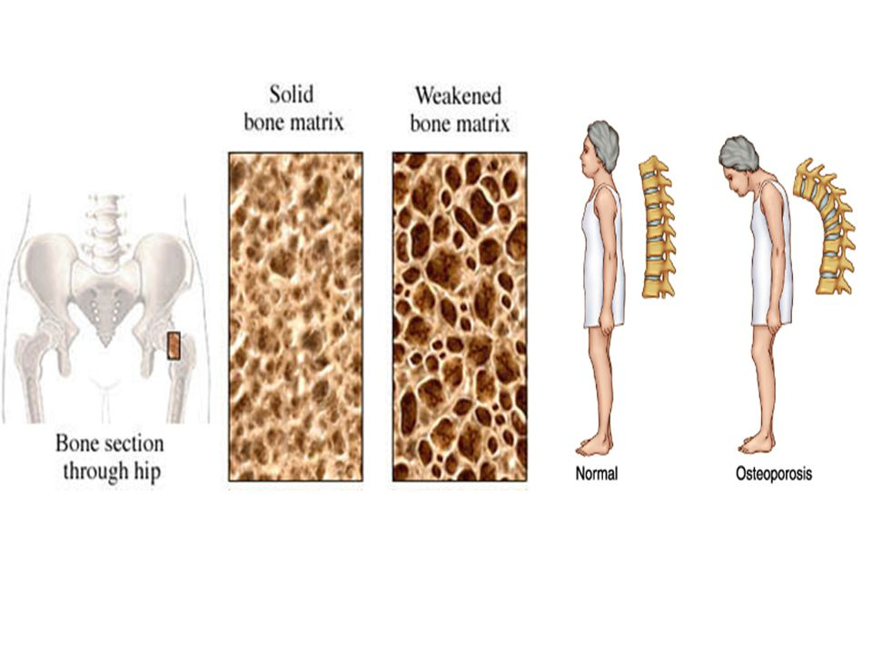Osteoporosis Predisposing factors: – Sedentary living – Inadequate estrogen – Underweight – Low calcium intake