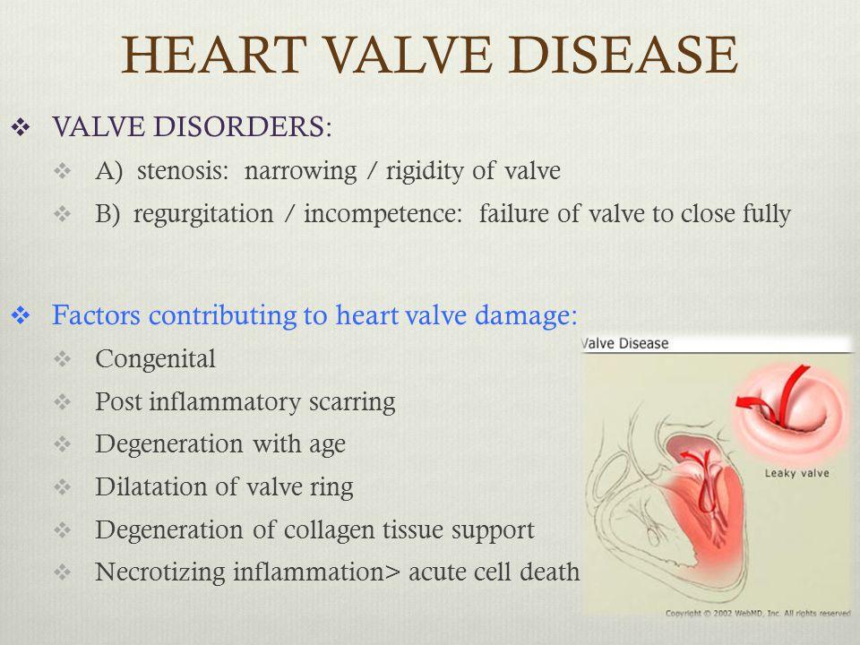 HEART VALVE DISEASE  VALVE DISORDERS:  A) stenosis: narrowing / rigidity of valve  B) regurgitation / incompetence: failure of valve to close fully