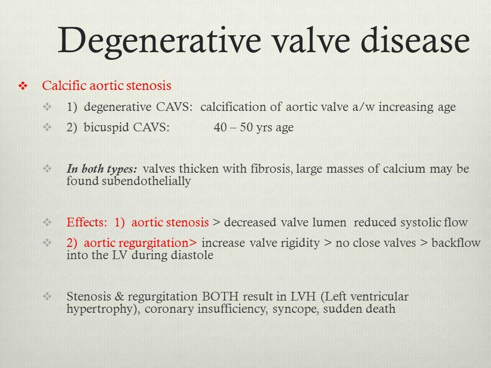 Degenerative valve disease  Calcific aortic stenosis  1) degenerative CAVS: calcification of aortic valve a/w increasing age  2) bicuspid CAVS: 40