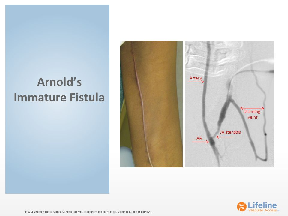© 2013 Lifeline Vascular Access. All rights reserved. Proprietary and confidential. Do not copy; do not distribute. Arnold's Immature Fistula Artery A