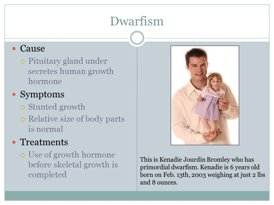 Dwarfism Cause  Pituitary gland under secretes human growth hormone Symptoms  Stunted growth  Relative size of body parts is normal Treatments  Use of growth hormone before skeletal growth is completed