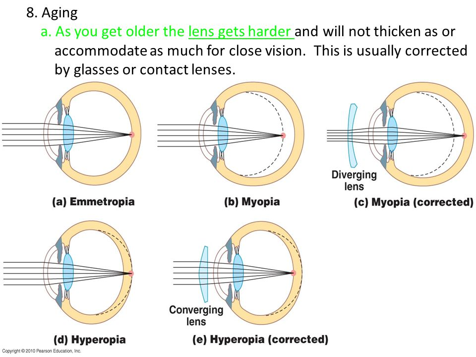 8. Aging a. As you get older the lens gets harder and will not thicken as or accommodate as much for close vision. This is usually corrected by glasse