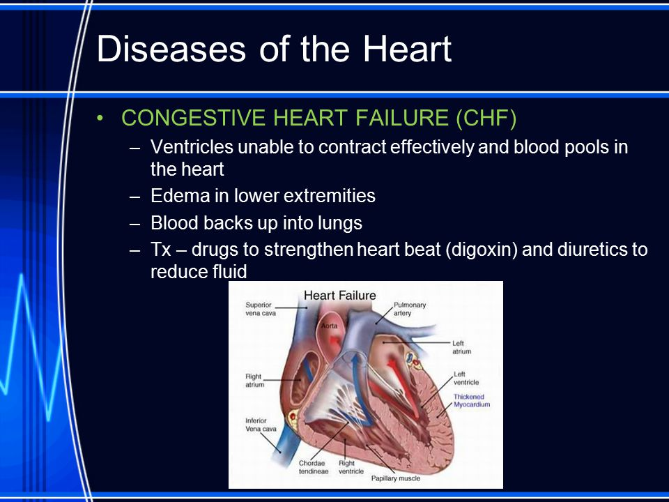 Diseases of the Heart CONGESTIVE HEART FAILURE (CHF) –Ventricles unable to contract effectively and blood pools in the heart –Edema in lower extremiti