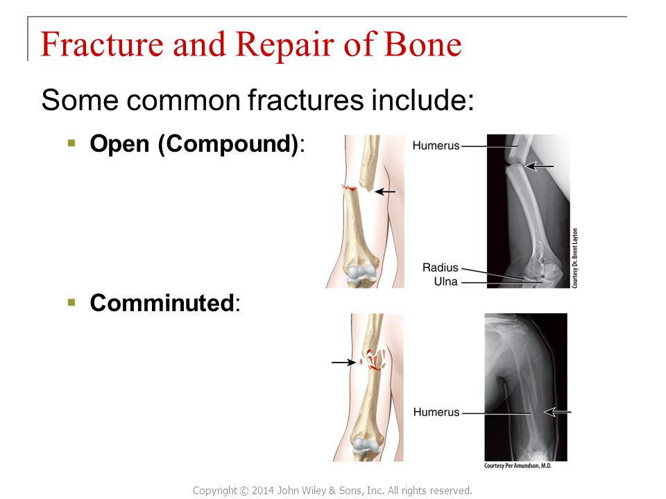 Some common fractures include:  Open (Compound):  Comminuted: Fracture and Repair of Bone Copyright © 2014 John Wiley & Sons, Inc.