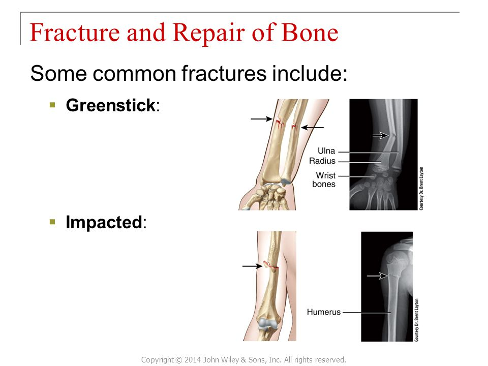 Some common fractures include:  Greenstick:  Impacted: Fracture and Repair of Bone Copyright © 2014 John Wiley & Sons, Inc.