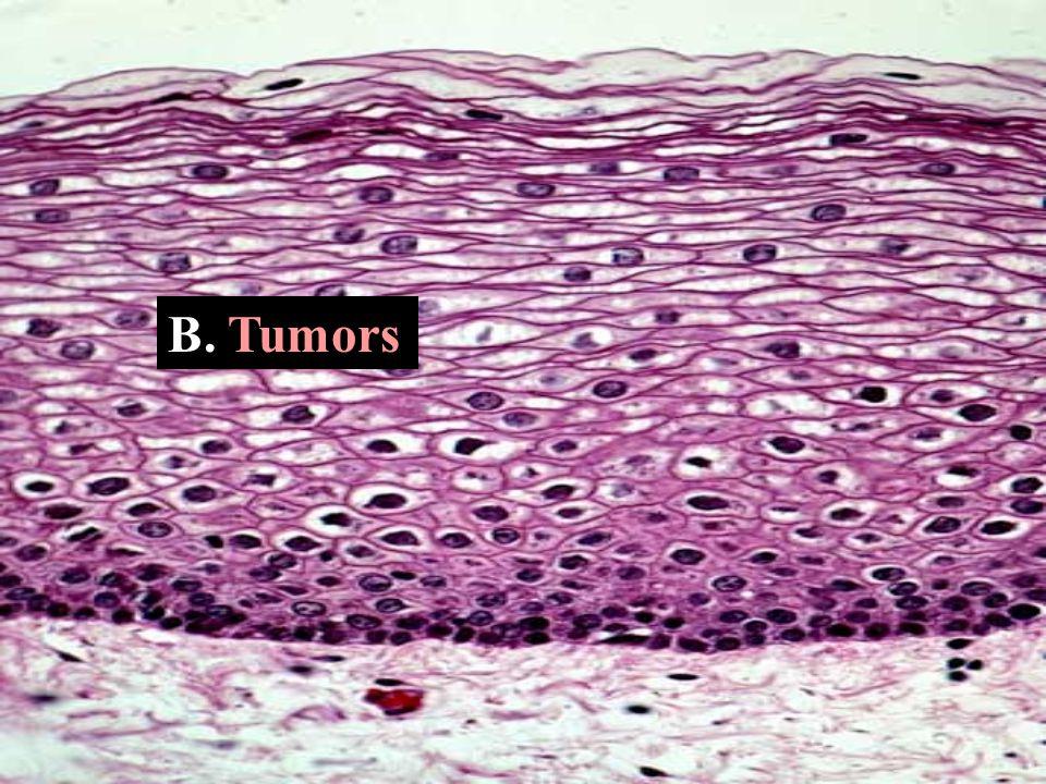B. Tumors