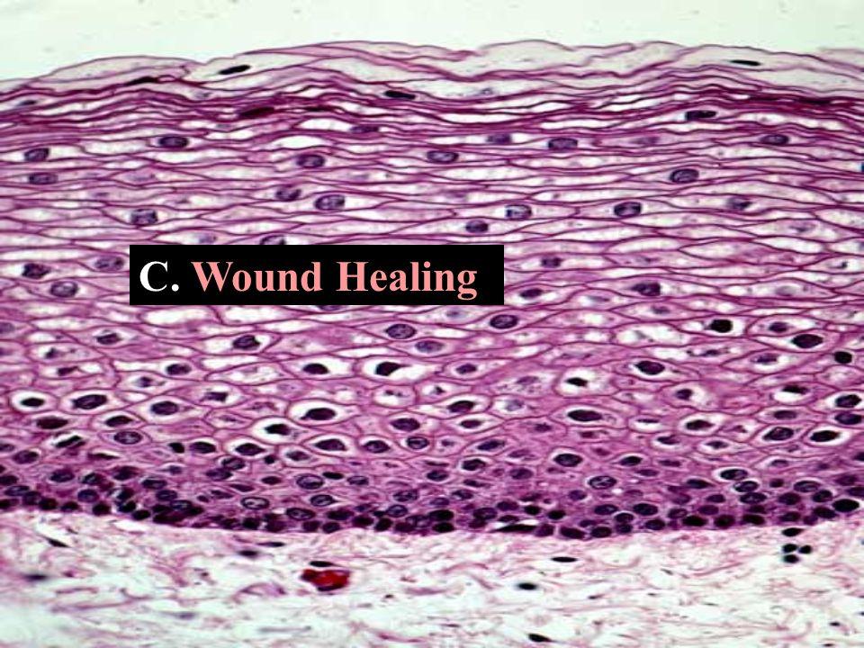 C. Wound Healing