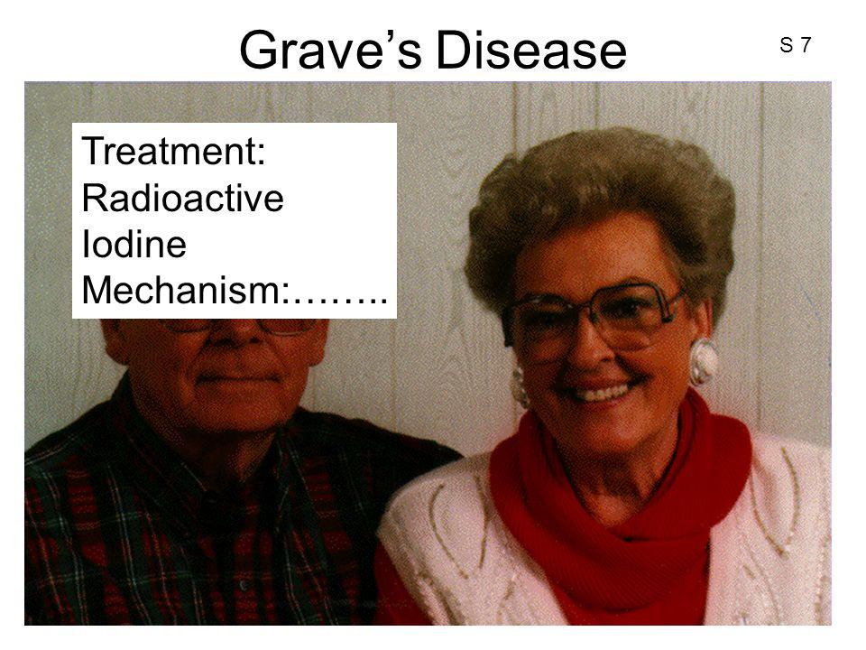 Grave's Disease Treatment: Radioactive Iodine Mechanism:…….. S 7