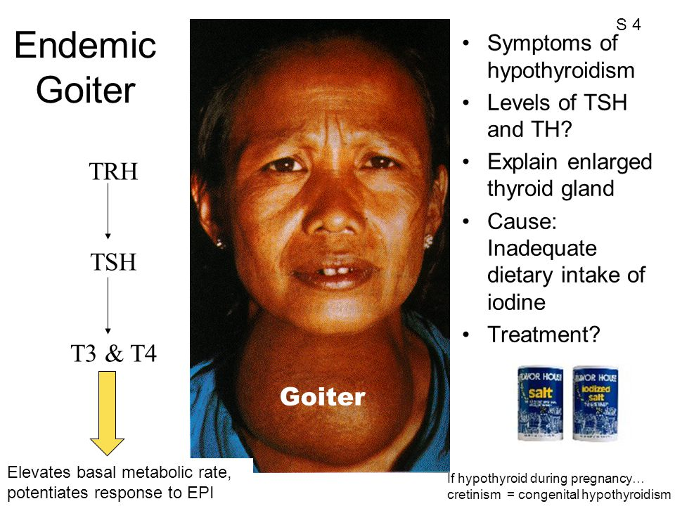 Symptoms of hypothyroidism Levels of TSH and TH? Explain enlarged thyroid gland Cause: Inadequate dietary intake of iodine Treatment? Endemic Goiter T