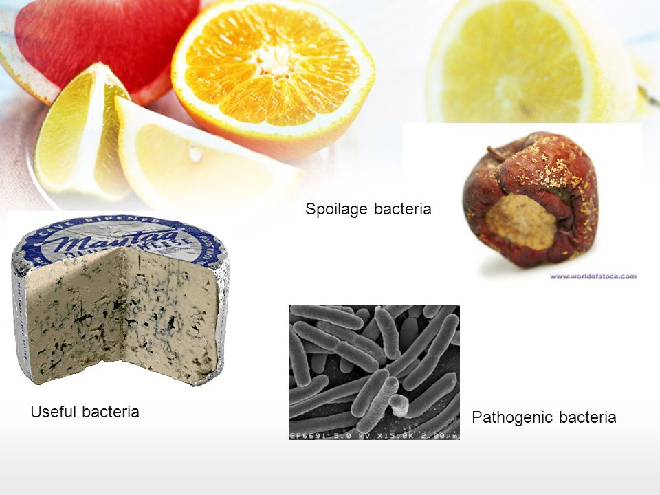 Useful bacteria Spoilage bacteria Pathogenic bacteria