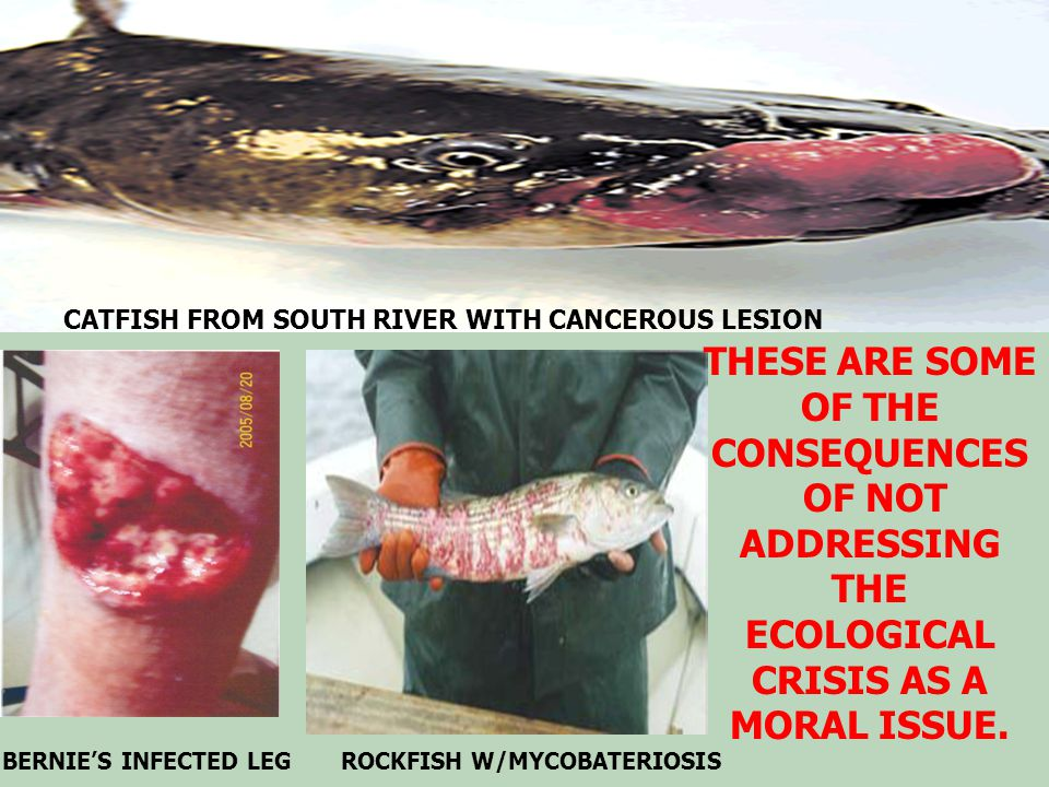 BERNIE'S INFECTED LEG ROCKFISH W/MYCOBATERIOSIS CATFISH FROM SOUTH RIVER WITH CANCEROUS LESION THESE ARE SOME OF THE CONSEQUENCES OF NOT ADDRESSING THE ECOLOGICAL CRISIS AS A MORAL ISSUE.
