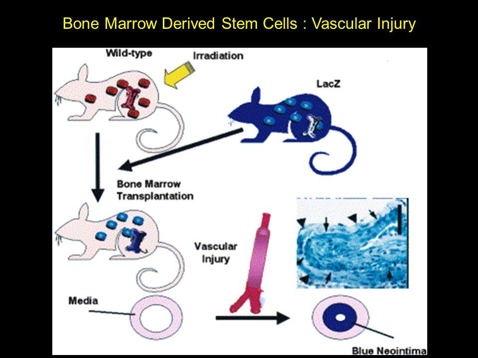 Bone Marrow Derived Stem Cells : Vascular Injury