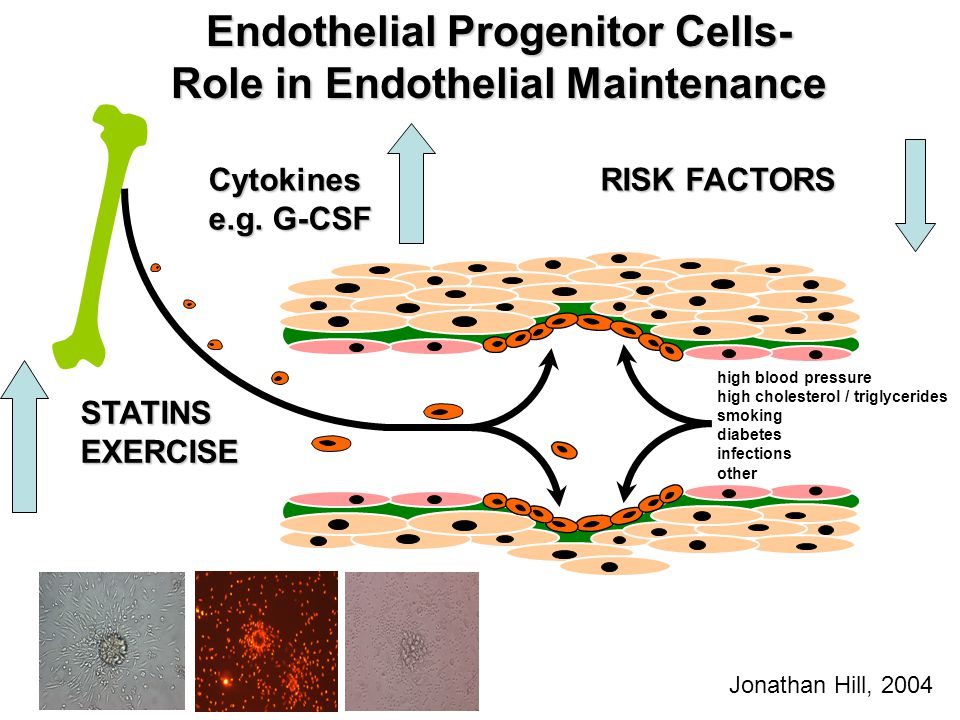 Endothelial Progenitor Cells- Role in Endothelial Maintenance high blood pressure high cholesterol / triglycerides smoking diabetes infections other R