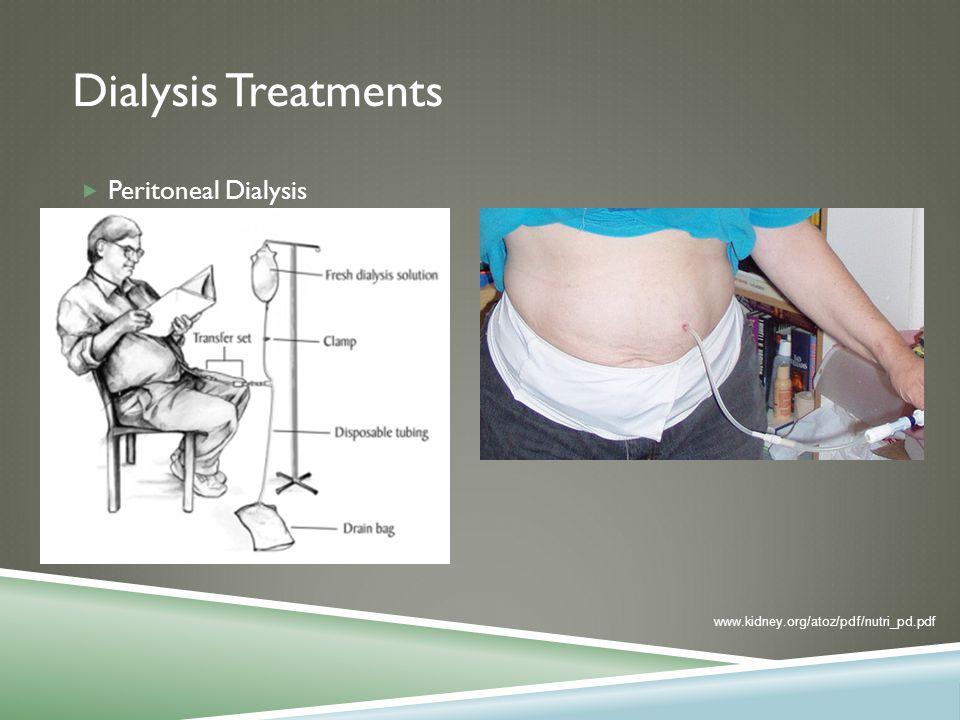 Dialysis Treatments  Peritoneal Dialysis www.kidney.org/atoz/pdf/nutri_pd.pdf