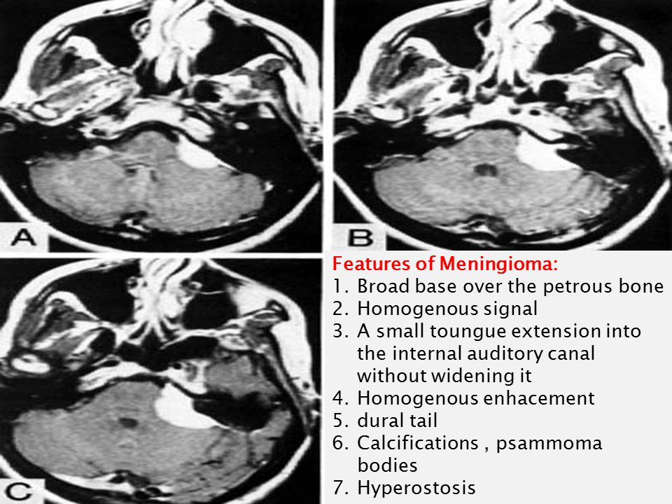 Features of Meningioma: 1.Broad base over the petrous bone 2.Homogenous signal 3.A small toungue extension into the internal auditory canal without widening it 4.Homogenous enhacement 5.dural tail 6.Calcifications, psammoma bodies 7.Hyperostosis