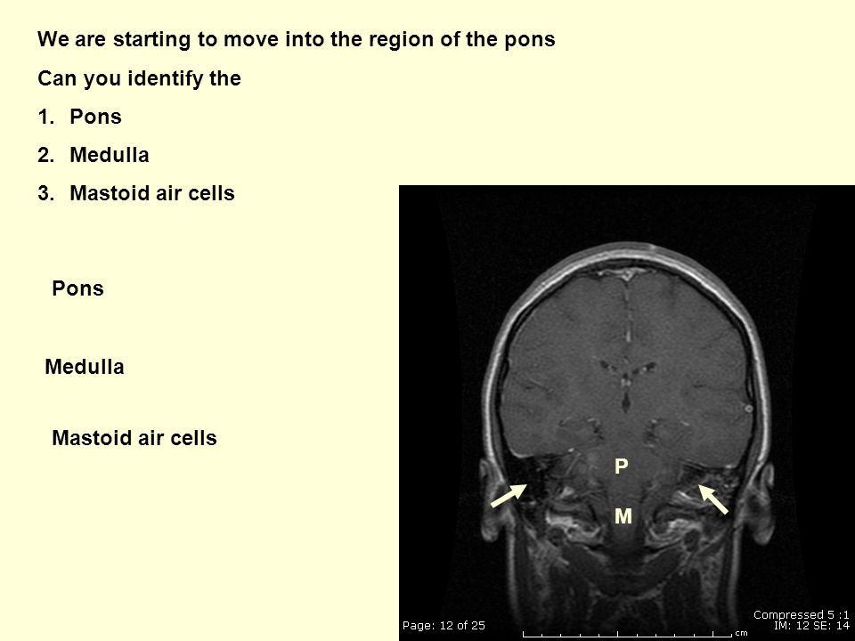 We are starting to move into the region of the pons Can you identify the 1.Pons 2.Medulla 3.Mastoid air cells P Pons Medulla M Mastoid air cells