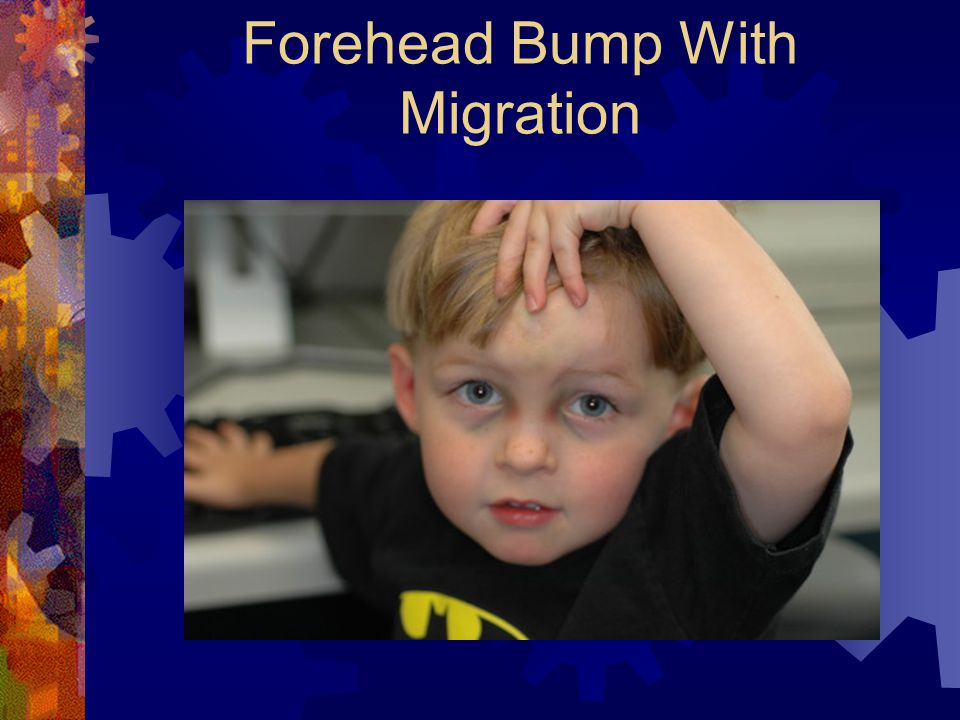 Forehead Bump With Migration