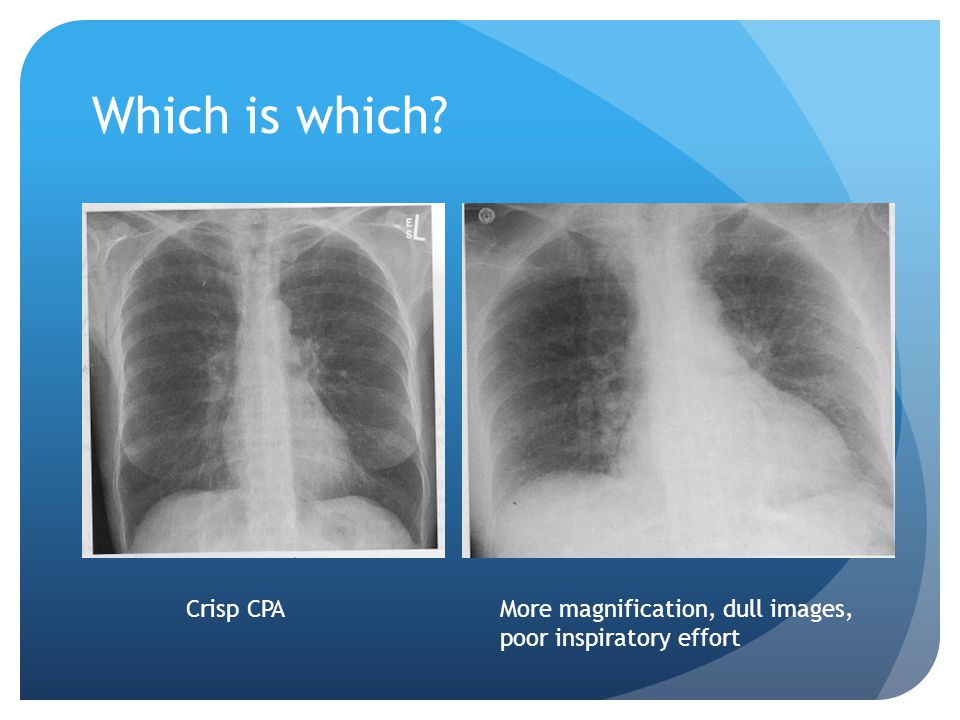 Which is which? More magnification, dull images, poor inspiratory effort Crisp CPA