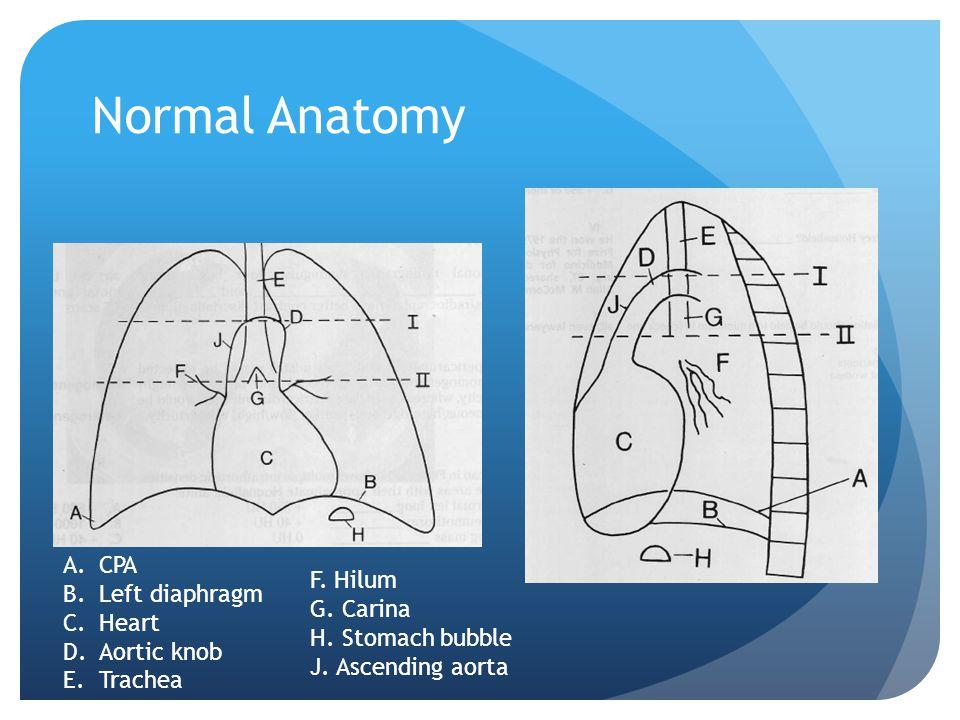 Normal Anatomy A.CPA B.Left diaphragm C.Heart D.Aortic knob E.Trachea F. Hilum G. Carina H. Stomach bubble J. Ascending aorta