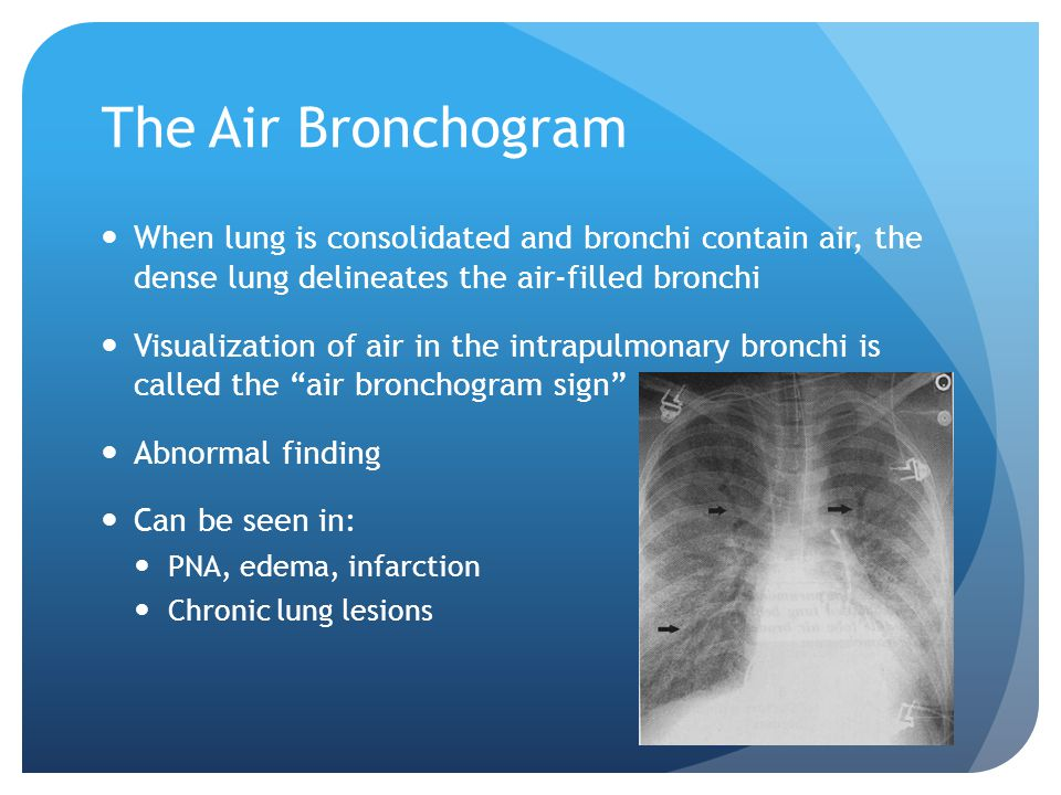 The Air Bronchogram When lung is consolidated and bronchi contain air, the dense lung delineates the air-filled bronchi Visualization of air in the intrapulmonary bronchi is called the air bronchogram sign Abnormal finding Can be seen in: PNA, edema, infarction Chronic lung lesions
