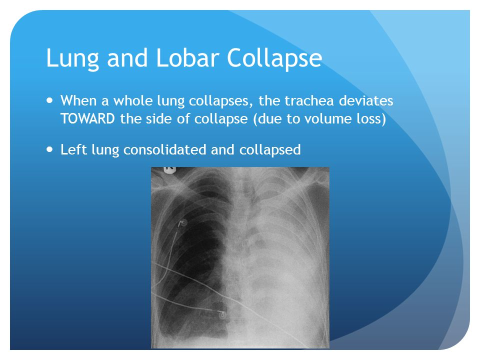 Lung and Lobar Collapse When a whole lung collapses, the trachea deviates TOWARD the side of collapse (due to volume loss) Left lung consolidated and collapsed