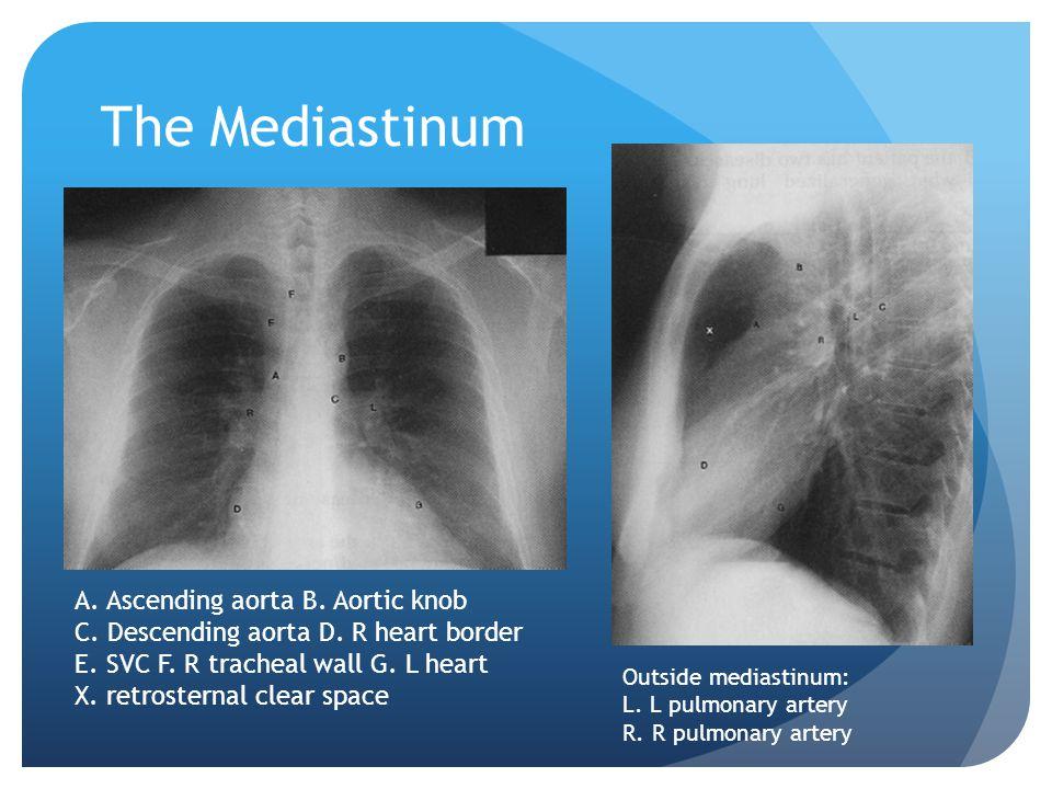 The Mediastinum A. Ascending aorta B. Aortic knob C. Descending aorta D. R heart border E. SVC F. R tracheal wall G. L heart X. retrosternal clear spa