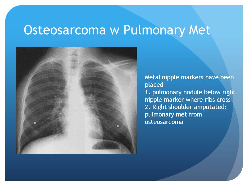 Osteosarcoma w Pulmonary Met Metal nipple markers have been placed 1.