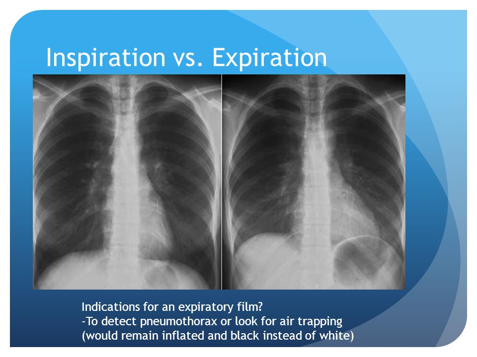 Inspiration vs.Expiration Indications for an expiratory film.