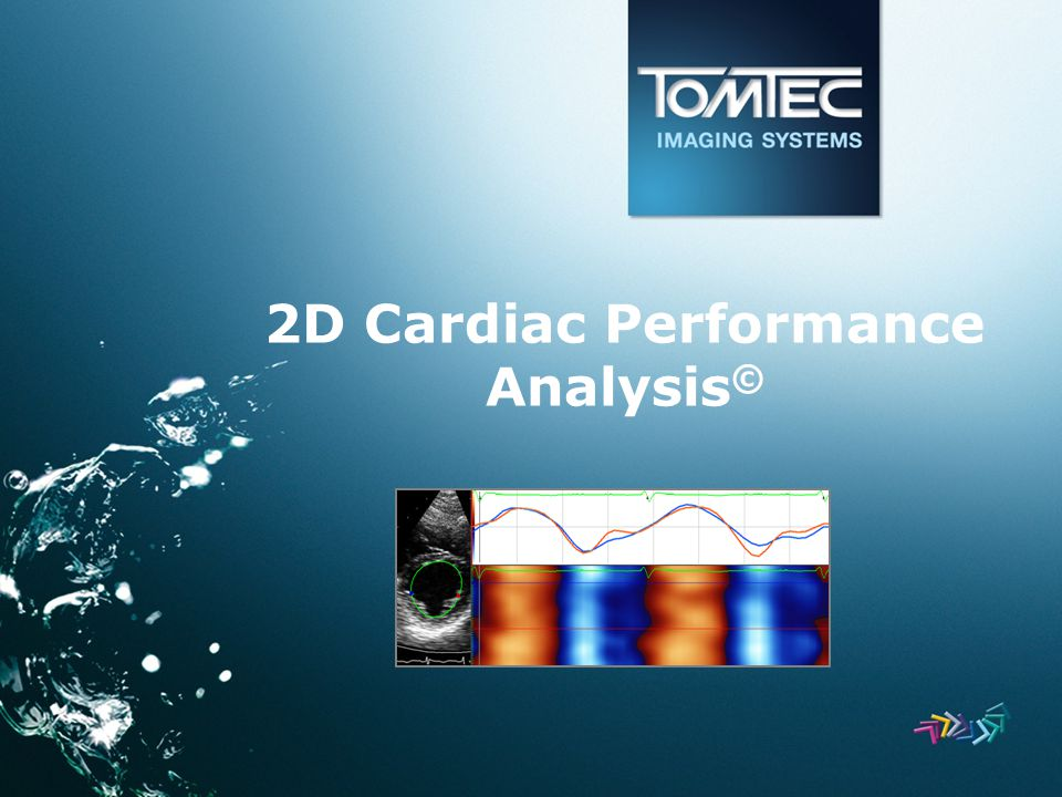 2D Cardiac Performance Analysis ©