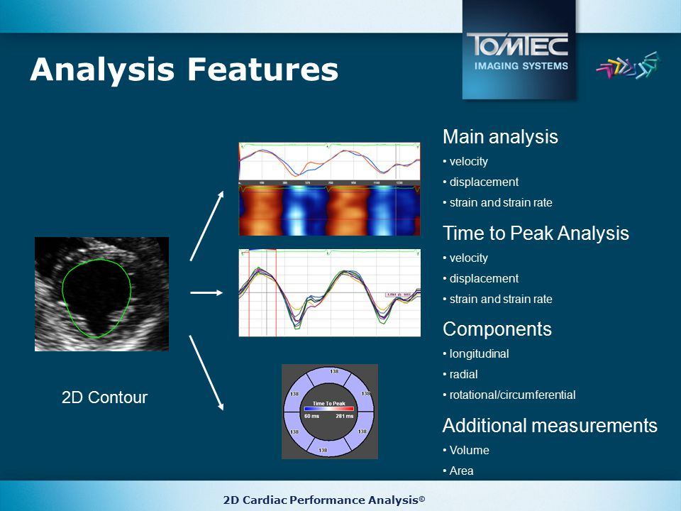 Additional measurements Volume Area Components longitudinal radial rotational/circumferential Analysis Features 2D Contour Main analysis velocity displacement strain and strain rate Time to Peak Analysis velocity displacement strain and strain rate 2D Cardiac Performance Analysis ©