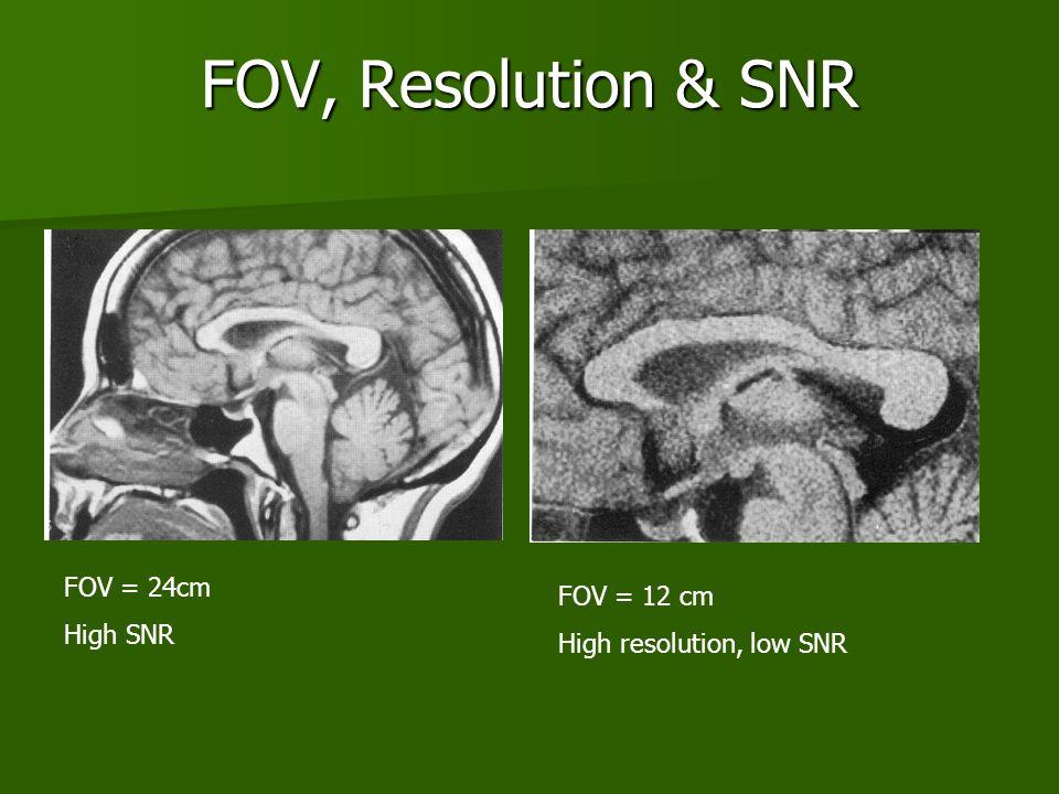 FOV, Resolution & SNR FOV = 24cm High SNR FOV = 12 cm High resolution, low SNR