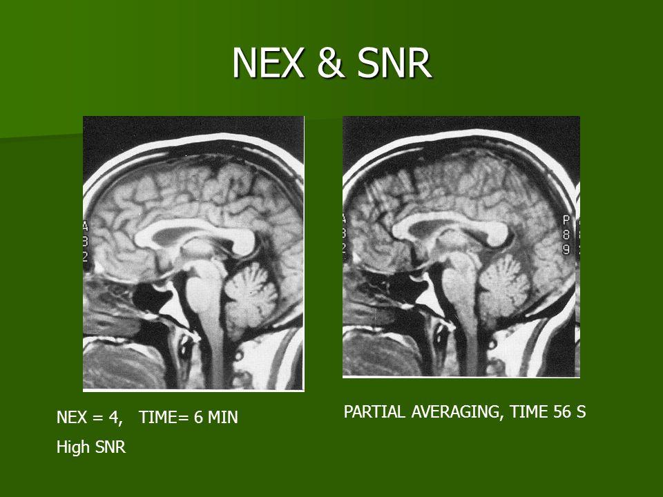 NEX & SNR NEX = 4, TIME= 6 MIN High SNR PARTIAL AVERAGING, TIME 56 S