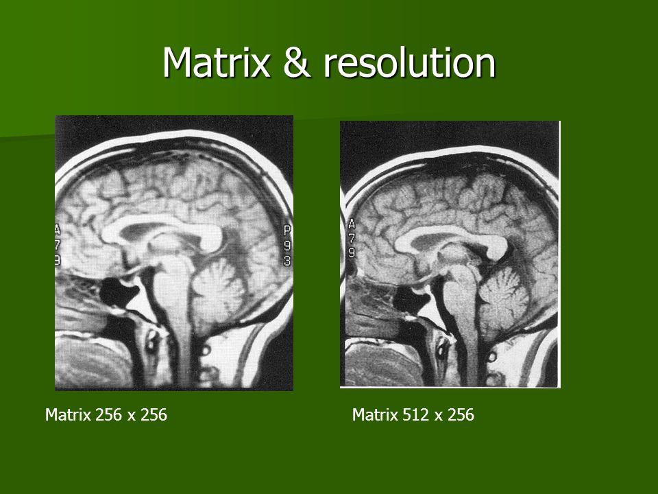 Matrix & resolution Matrix 256 x 256Matrix 512 x 256