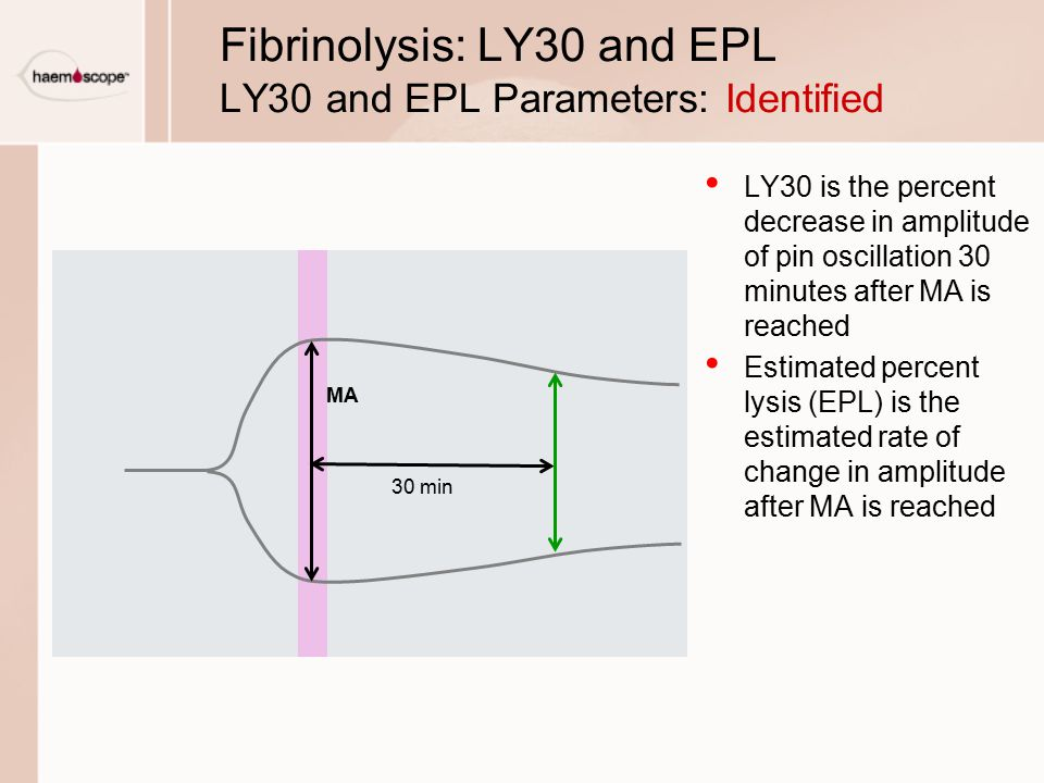 LY30 is the percent decrease in amplitude of pin oscillation 30 minutes after MA is reached Estimated percent lysis (EPL) is the estimated rate of change in amplitude after MA is reached Fibrinolysis: LY30 and EPL LY30 and EPL Parameters: Identified MA 30 min