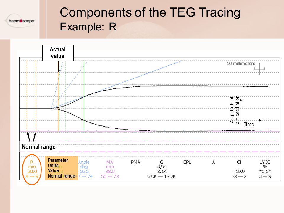 Components of the TEG Tracing Example: R Actual value Parameter Units Value Normal range Time Amplitude of pin oscillation Normal range