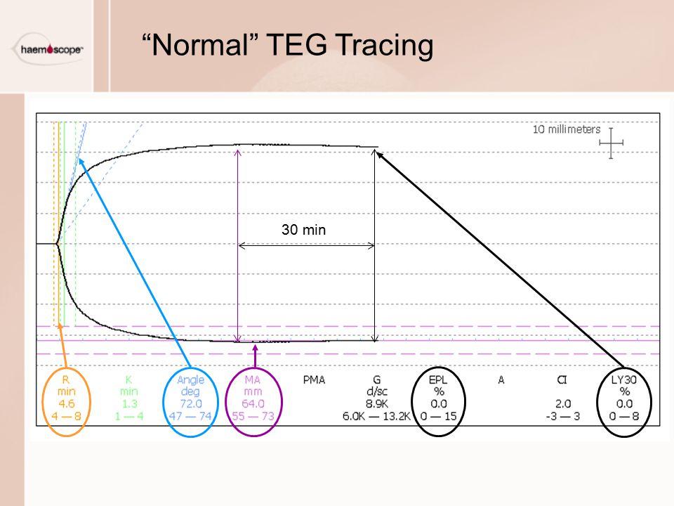 Normal TEG Tracing 30 min