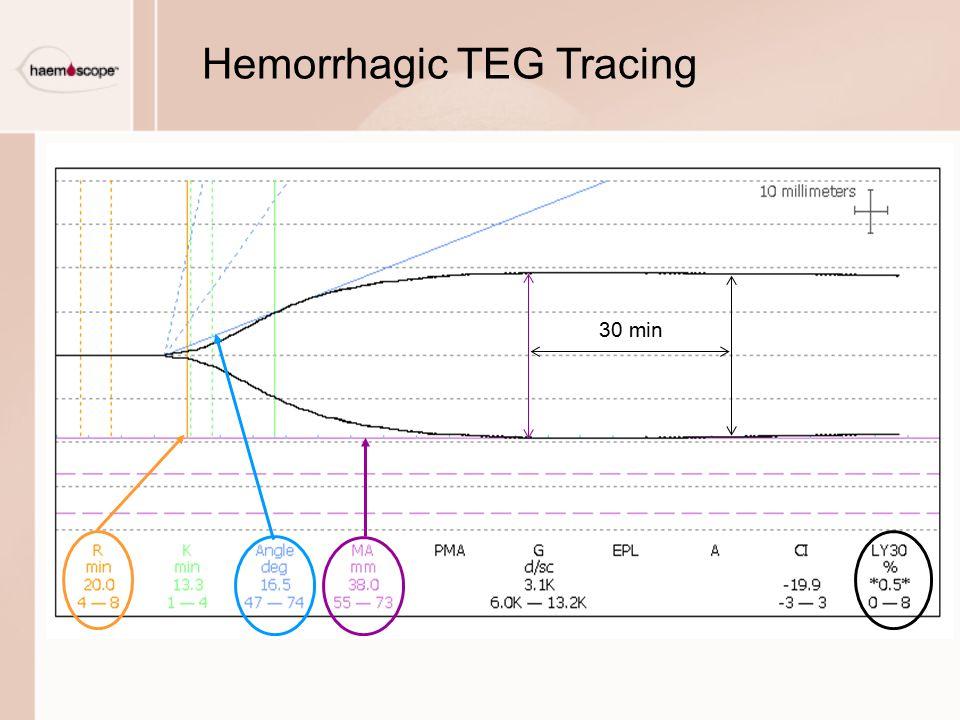 Hemorrhagic TEG Tracing 30 min