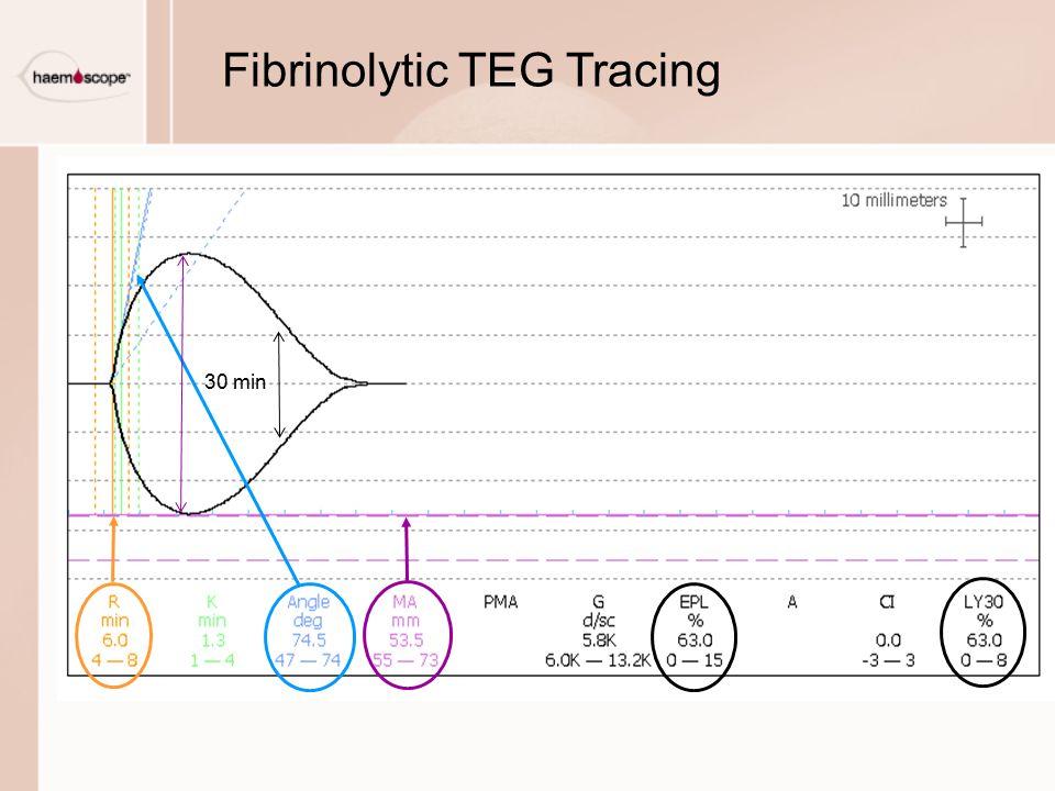 Fibrinolytic TEG Tracing 30 min