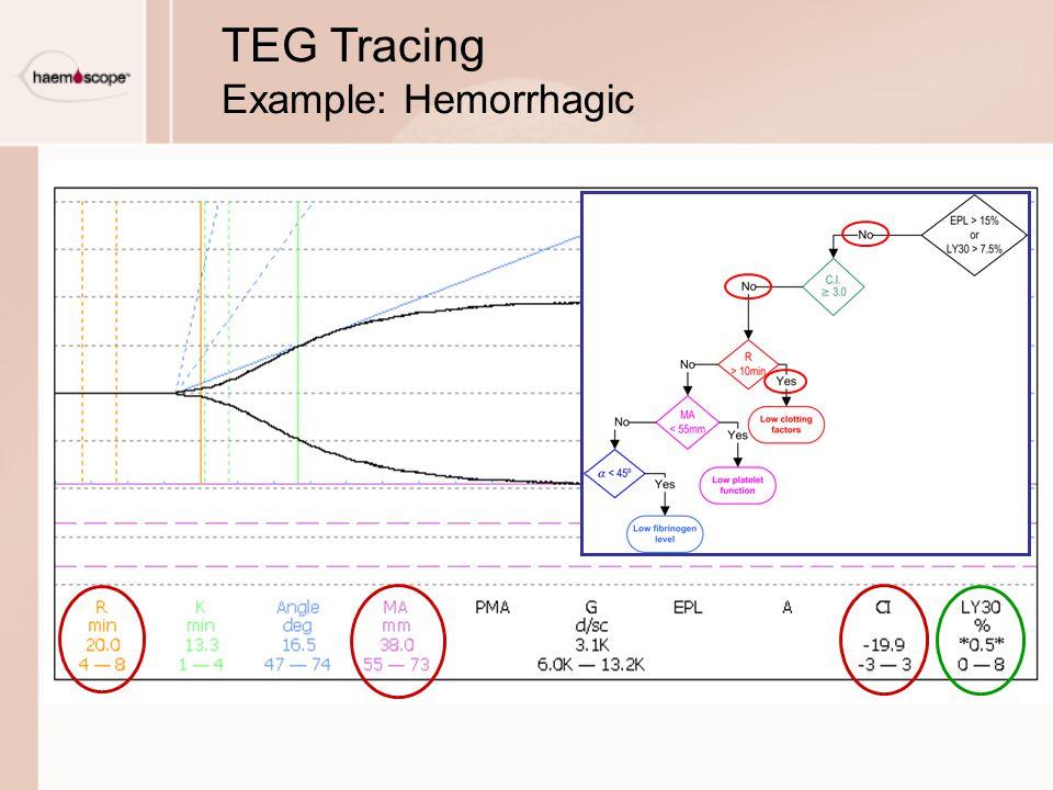 TEG Tracing Example: Hemorrhagic