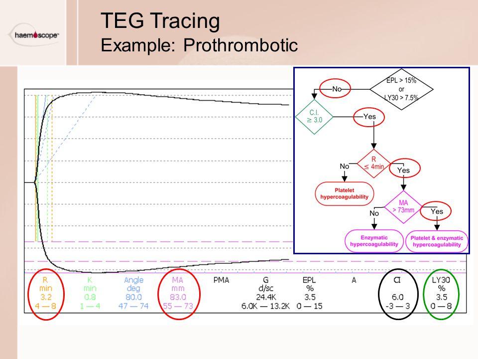 TEG Tracing Example: Prothrombotic