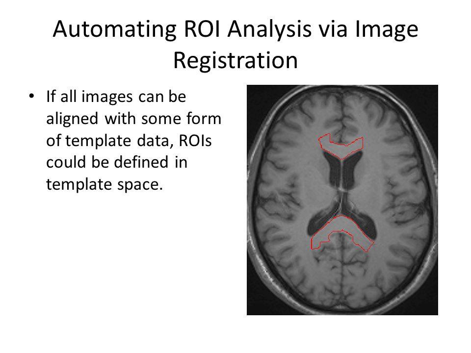 Automating ROI Analysis via Image Registration These ROIs could then be projected on to the original scans.