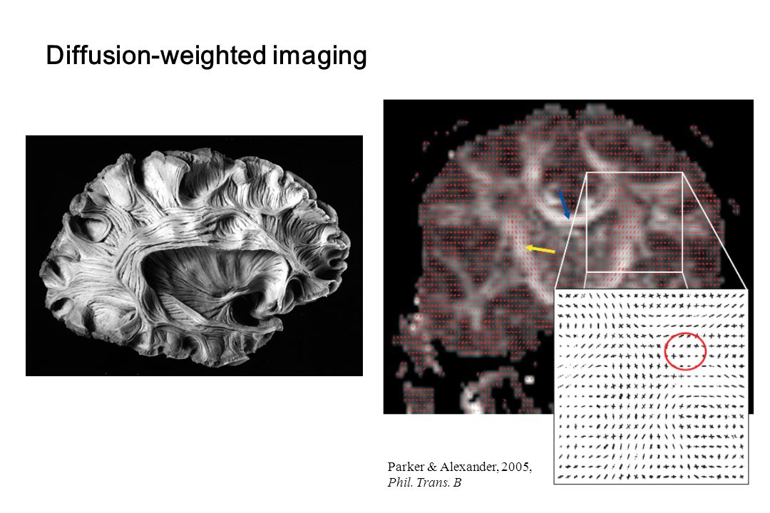 Diffusion-weighted imaging Parker & Alexander, 2005, Phil. Trans. B
