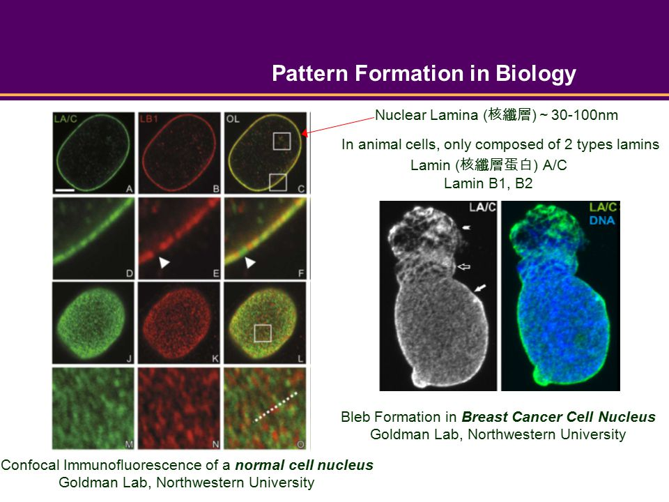 Pattern Formation in Biology Bleb Formation in Breast Cancer Cell Nucleus Goldman Lab, Northwestern University Confocal Immunofluorescence of a normal cell nucleus Goldman Lab, Northwestern University Lamin ( 核纖層蛋白 ) A/C Lamin B1, B2 Nuclear Lamina ( 核纖層 ) ~ 30-100nm In animal cells, only composed of 2 types lamins