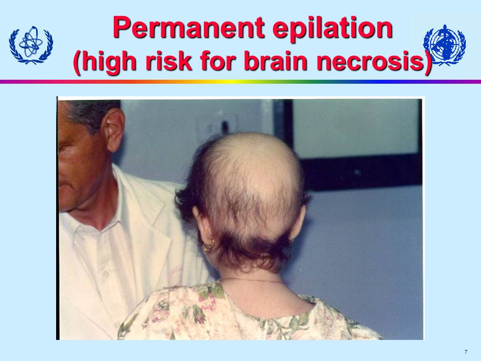 7 Permanent epilation (high risk for brain necrosis)
