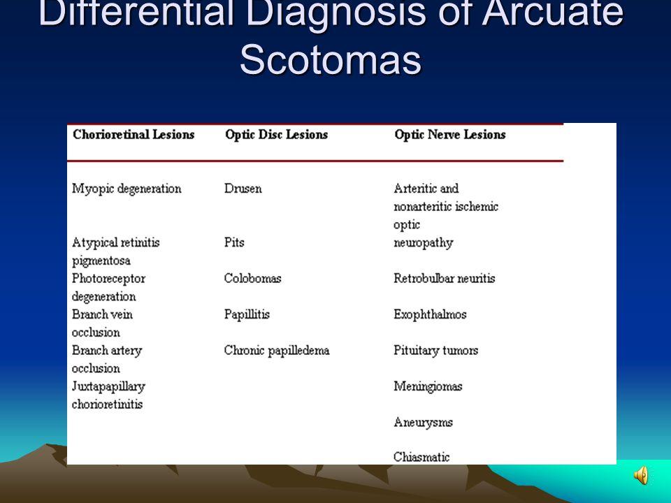Glaucomatous field deffects 1. Paracentral scotomas 2.