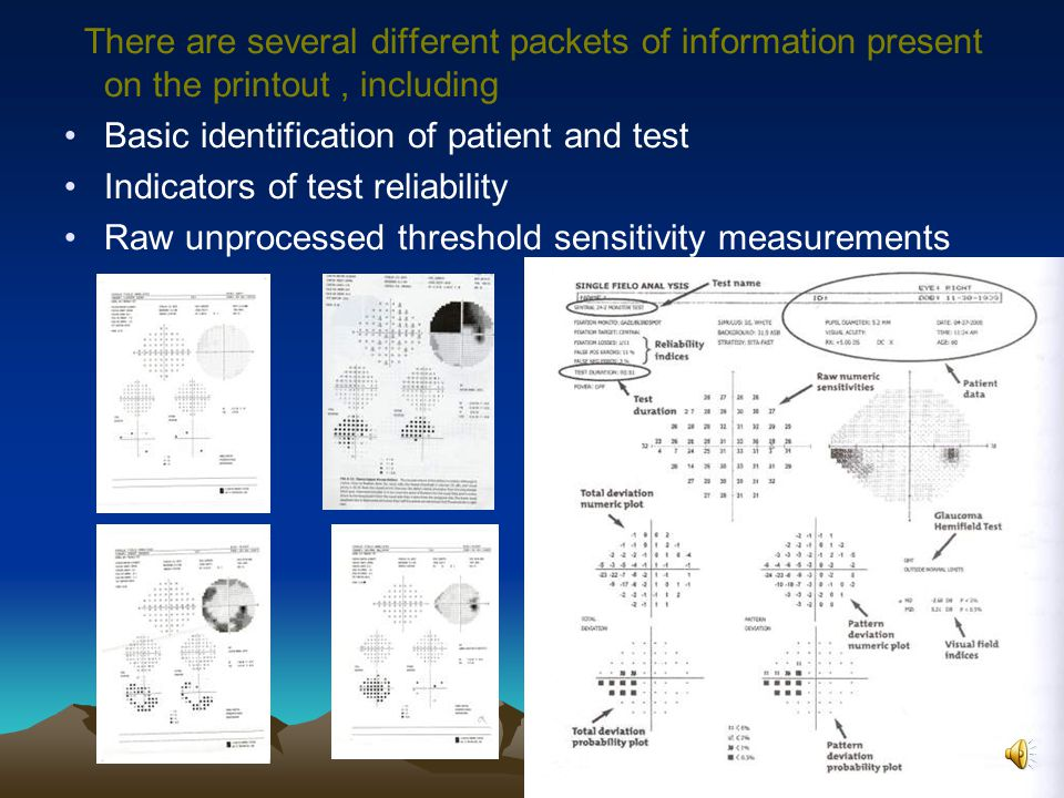 There are several different packets of information present on the printout, including Basic identification of patient and test Indicators of test reliability Raw unprocessed threshold sensitivity measurements