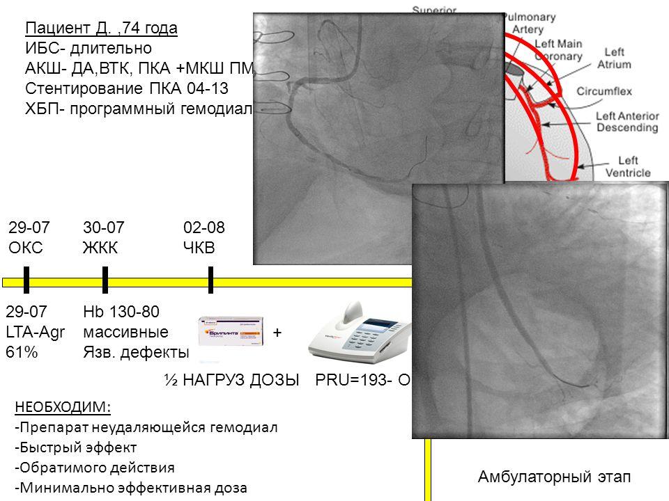 Пациент Д.,74 года ИБС- длительно АКШ- ДА,ВТК, ПКА +МКШ ПМЖВ 2006 Стентирование ПКА 04-13 ХБП- программный гемодиализ 07-13 29-07 ОКС 30-07 ЖКК Hb 130-80 массивные Язв.
