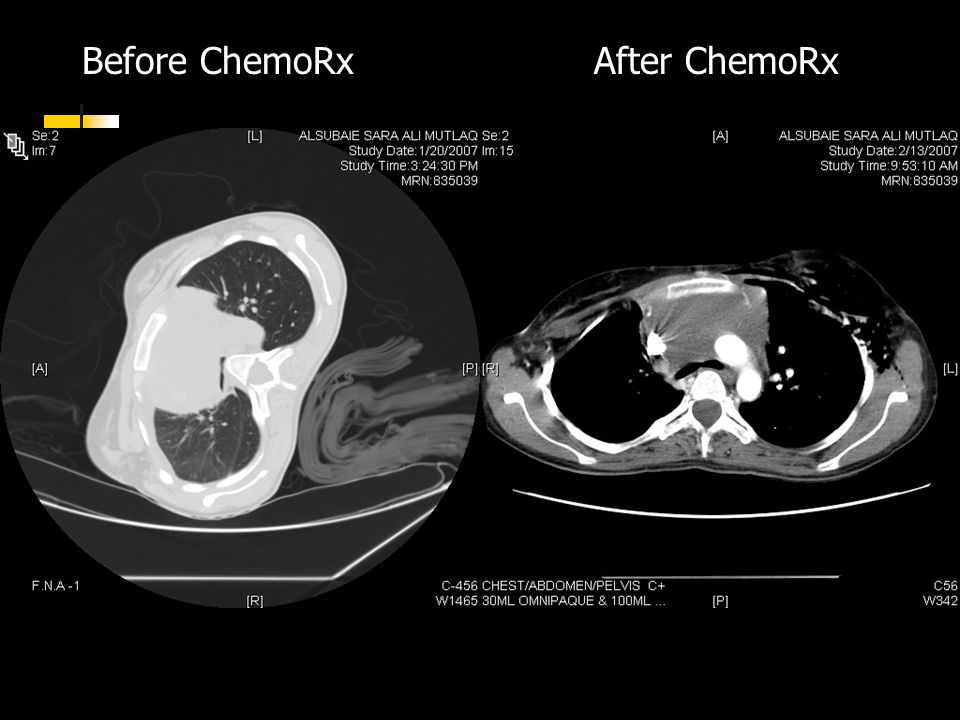 Before ChemoRxAfter ChemoRx
