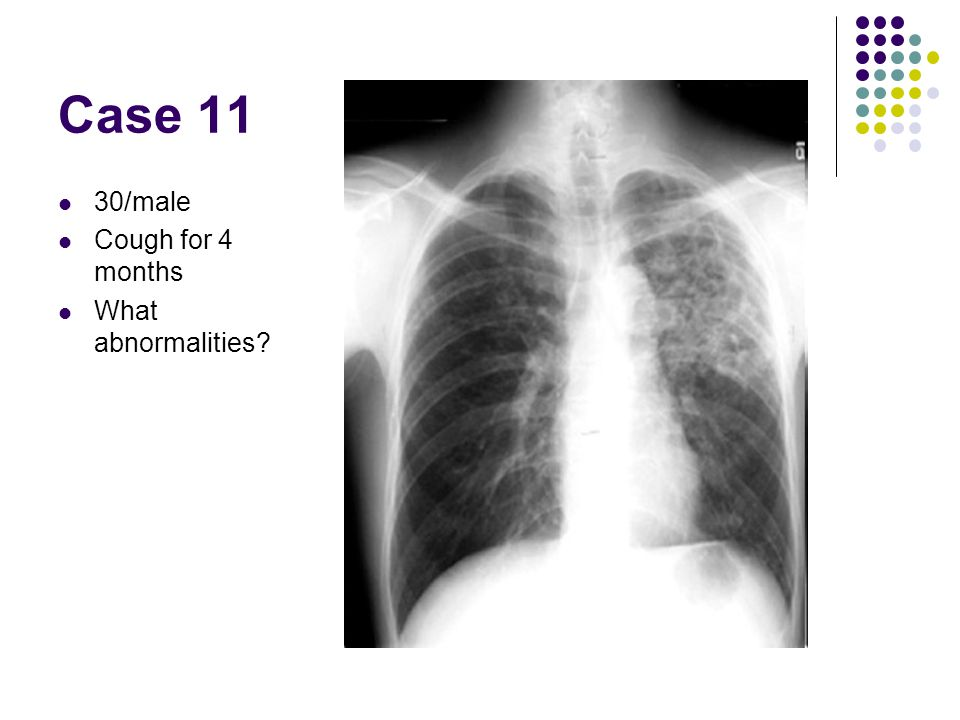 Case 11 30/male Cough for 4 months What abnormalities?