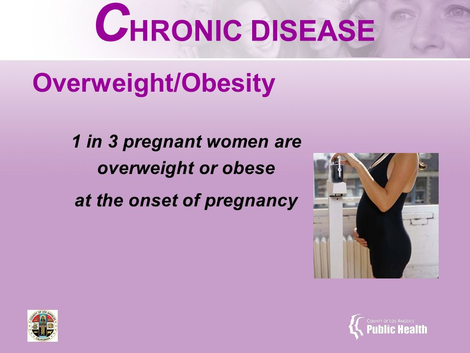 C HRONIC DISEASE Overweight/Obesity 1 in 3 pregnant women are overweight or obese at the onset of pregnancy